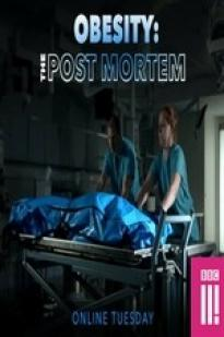 Obesity: The Post Mortem